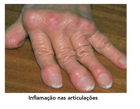 chikungunya4
