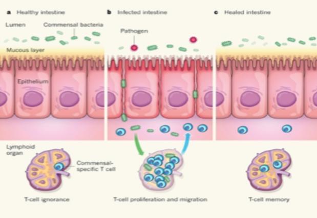 Hipotireoidismo tireoide 6