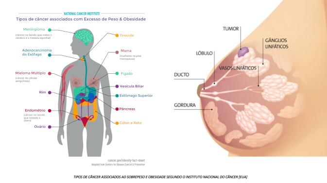 Cancer de Mama e Obesidade 1