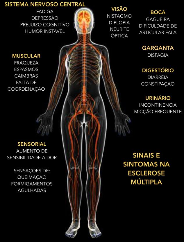 Esclerose Multipla 3