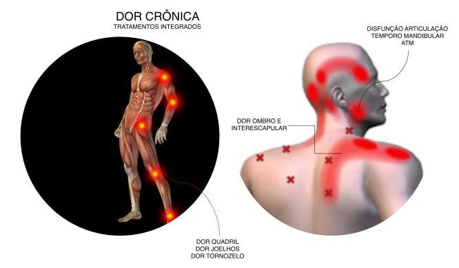 Dor Cronica 01